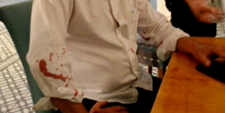 CHP'li Didim Belediye Başkanı ve avukatına  beyzbol sopalı saldırı